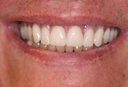 Smile Gallery Dentures