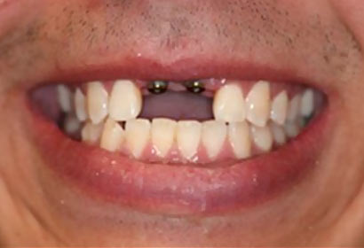 Smile Gallery Implants