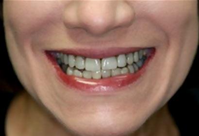 Smile Gallery Veneers