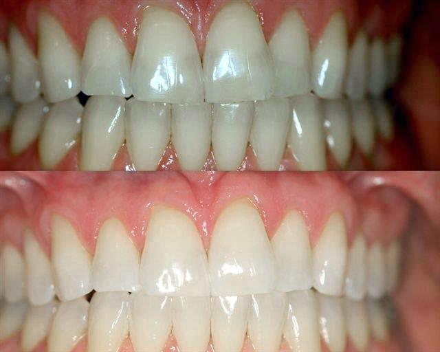 Virginia Beach Teeth Whitening Zoom Whitening Chesapeake